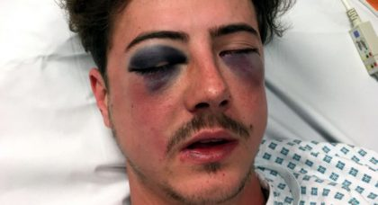 Let's hope the thug who did this to a fellow Tottenham supporter gets what he deserves